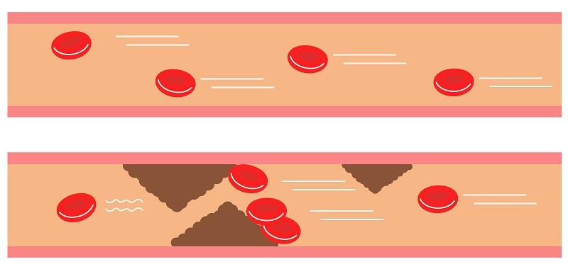 血流の画像